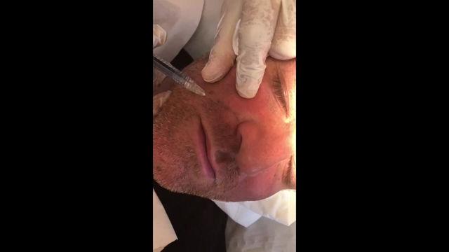 Injection acide hyaluronique du sillon nasogénien chez l'homme
