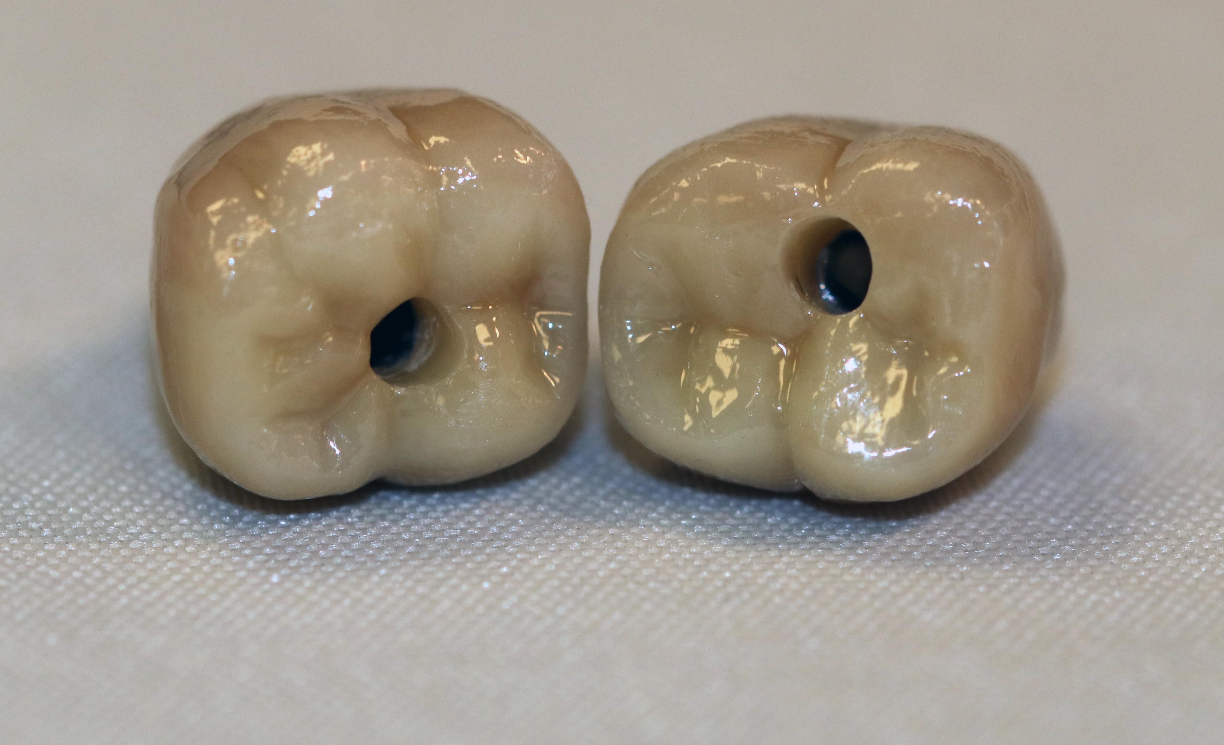 Biomet Molars 2
