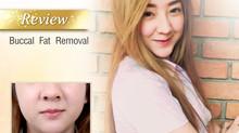 >> V-shape Program: Buccal Fat Removal by Dr. Kolawach <<