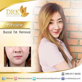 >> V-shape Program: Buccal Fat Removal by Dr. Kolawach <<