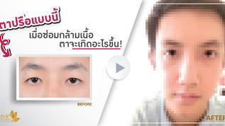 ตาปรือแบบนี้ เมื่อซ้อมกล้ามเนื้อตาจะเกิดอะไรขึ้น !