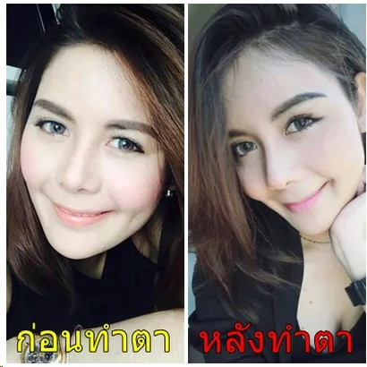 Plastic Surgery Bangkok