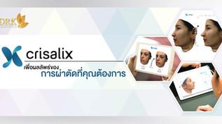 Crisalix 3D เพื่อผลลัพธ์ของการผ่าตัดที่คุณต้องการ