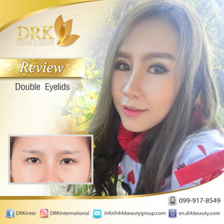 Double eyelid surgery for Sexy Eyes by DRK