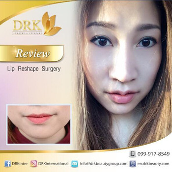 Kissable Lips Reshape Surgery by Dr. Aui