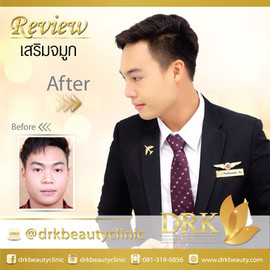 Before After K ไปร์ท.jpg