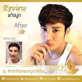Before After K ชินโชติ.jpg