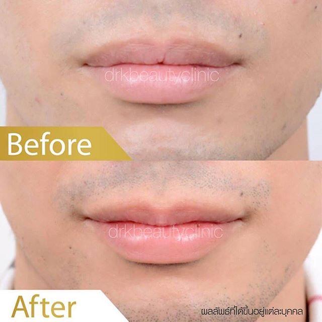 👄👱🏻 ผู้ชายก็ปากบางได้ ไม่มีโป๊ะ 👱🏻 👄_กับศัลยกรรมปากบาง Gentleman Style by DRK Beauty Clinic แผ