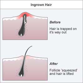 What is an Ingrown Hair