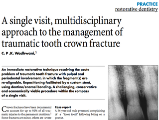 British Dental Journal: A single visit approach to management of traumatic fracture