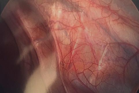 Fibrotic Endometriosis of Right Pelvic Sidewall