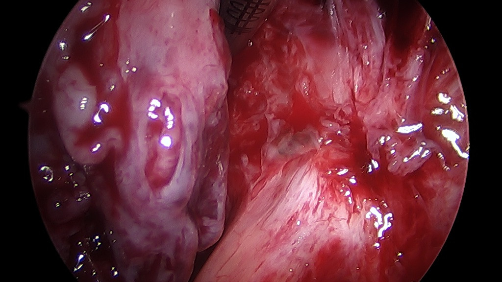 Severe Rectovaginal Endometriosis