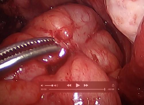 Rectal Endometriosis Lesion