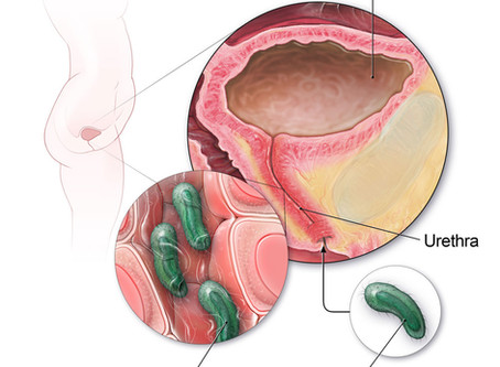Thoughts on Chronic Urinary Tract Infections