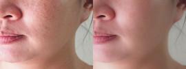 Face Forward Skin Care Center, Lancaster