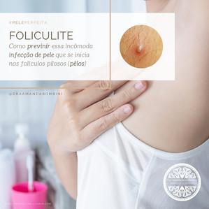 Foliculite: como prevenir essa incômoda infecção de pele