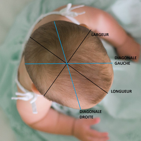 Dépistage gratuit des déformations crâniennes des nourrissons.