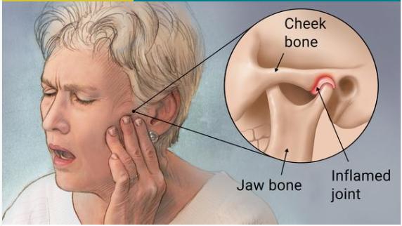 Temporomandibular Disorders top dentist in patna