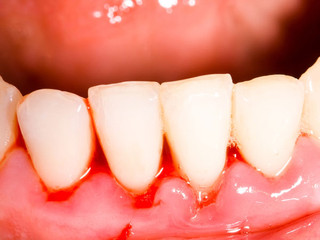 Teeth Cleaning/Scaling: How Important Is It?