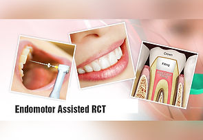 Single sitting root canal treatment the tooh dctors