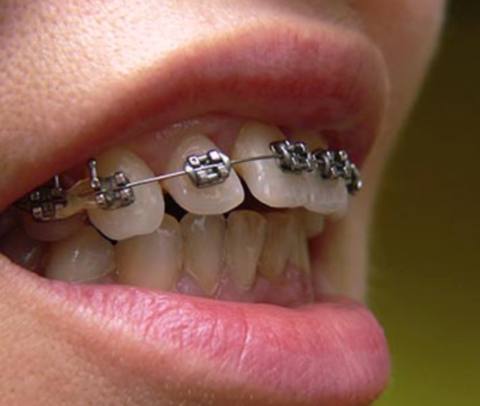 Crooked Teeth : the tooth doctors best dentist in paptna