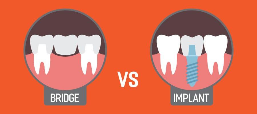 Bridge vs Dental Implant
