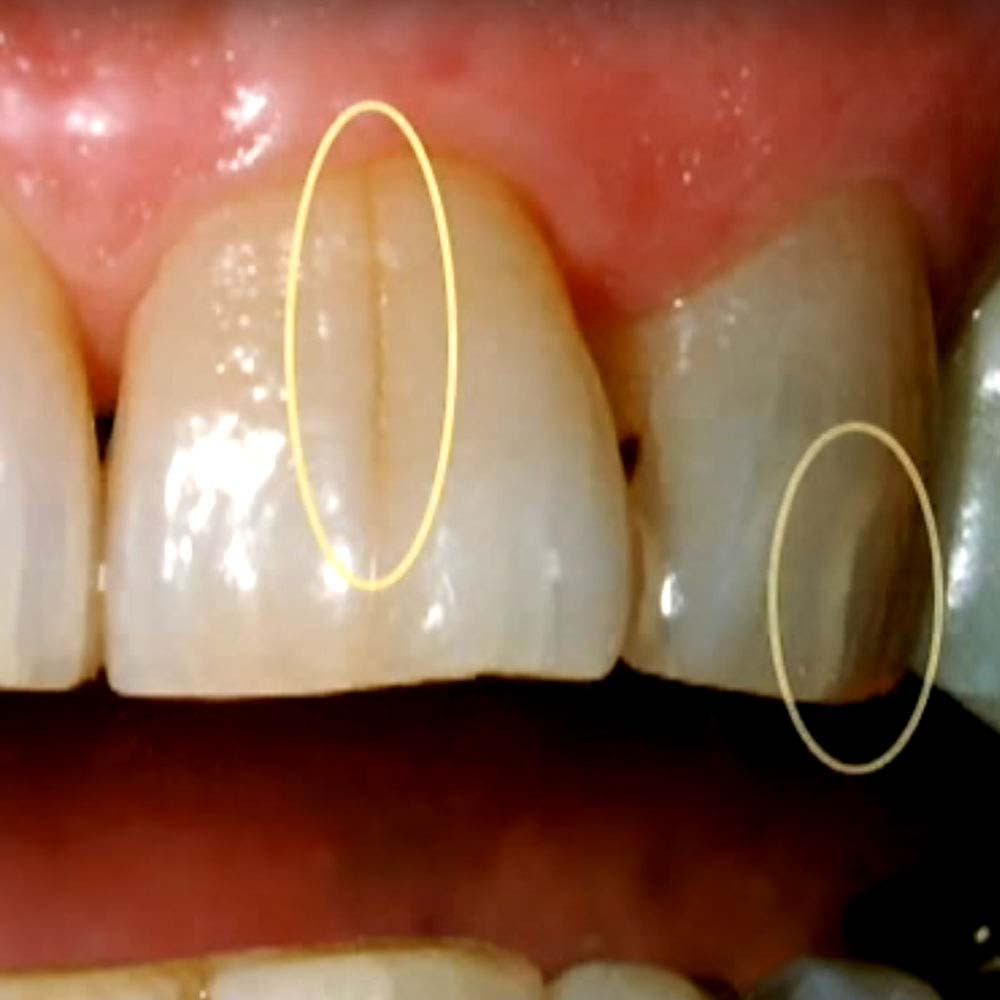 Tooth fracture lines