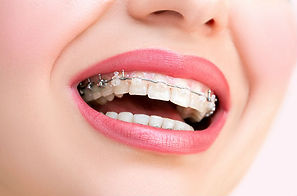 Orthodontic Treatment - The Tooth Doctors Patna