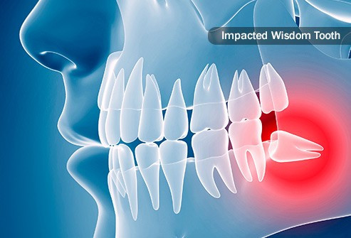 Broken/Chipped Tooth best dental clinic in patna