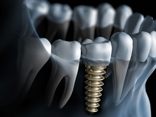 What Makes a Dental Implant Costly?