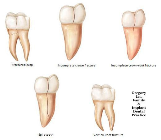 cause of tooth fractured