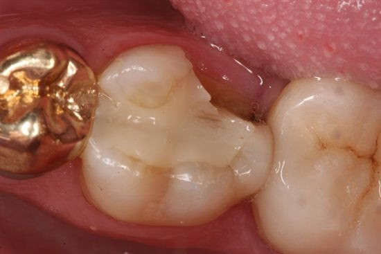fracture tooth cusp