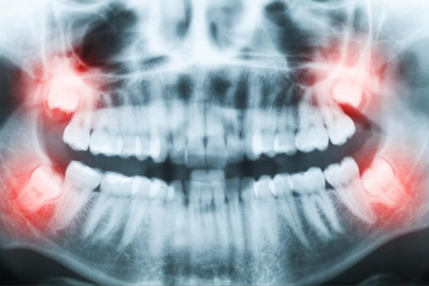 wisdom teeth.PNG