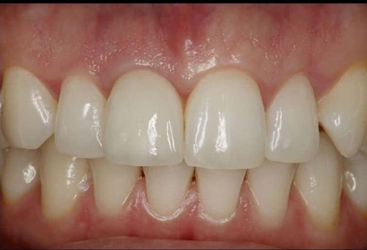 dental implant before and after_edited.jpg