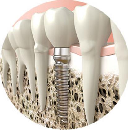 dental implant 3.PNG