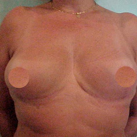 Mamoplastia - Pós