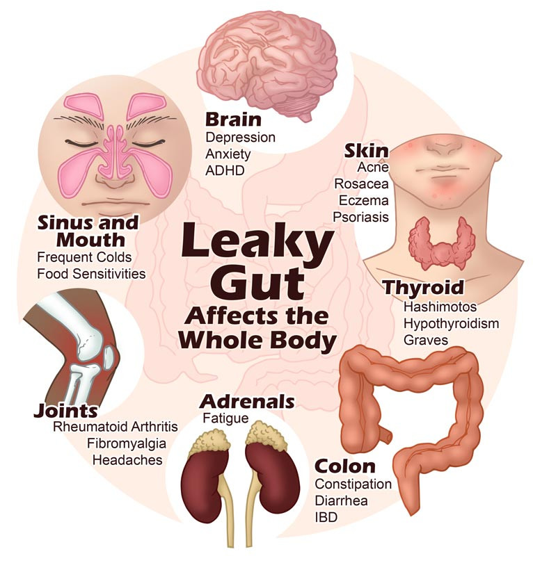 How Leaky Gut Can Affect Your Whole Body