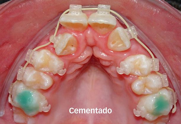 ortodoncia2_cem.jpg