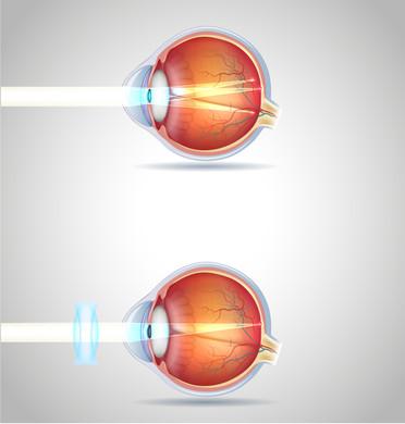 astigmatie