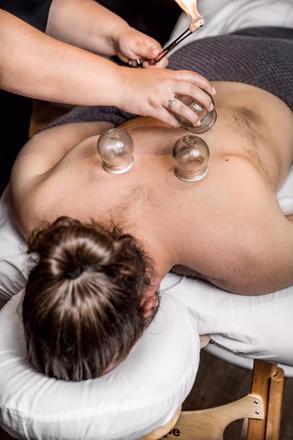 10 raisons les plus fréquentes d'utiliser les ventouses en acupuncture