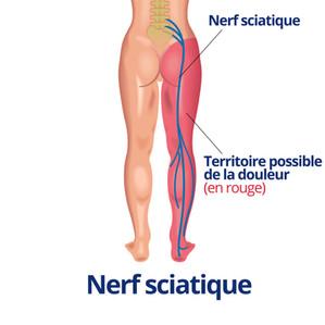 Le nerf sciatique