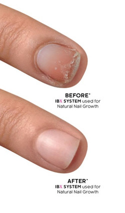 Before & After: IBX Nail Therapy