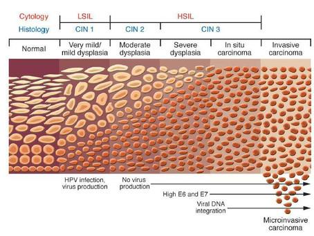 HPV NEDİR? TANI VE KORUNMA YÖNTEMLERİ