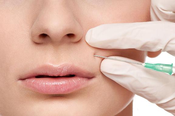 MyFace Aesthetics Injections