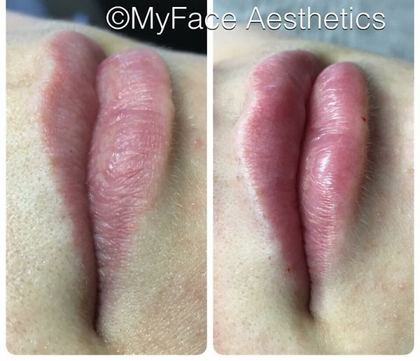 MyFace Aesthetics Before & After