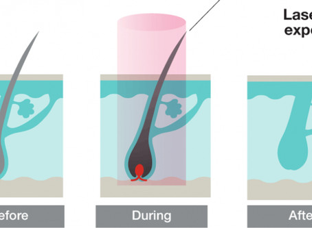 Végleges szőrtelenítés orvosesztétikai dióda lézerrel
