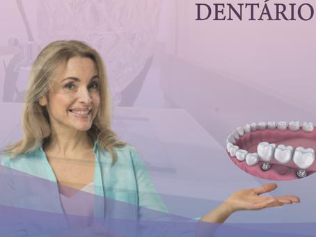 Implante Dentário - melhor solução para substituir perda de dentes.