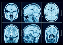 Suffering Traumatic Brain Injury and PTSD After a Car Accident