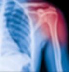 X-ray image of shoulder pain, shoulder ligament tendinitis, shoulder muscle strain._edited.jpg