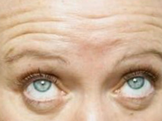 It's not your wrinkles but your eyebrows that are ageing you: Latest Hollywood beauty treatment sees